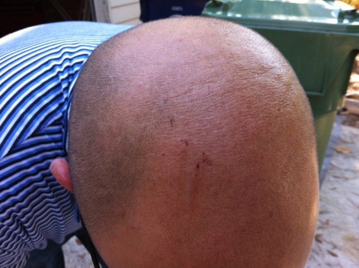 Man Gets Bit In The Head By A Snake After Walking Out His Own Door (5 pics)