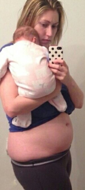 New Mom Makes An Impressive Transformation 10 Months After Giving Birth (2 pics)