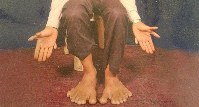 A Man In India Holds The Guinness World Record For Having The Most Fingers (7 pics)