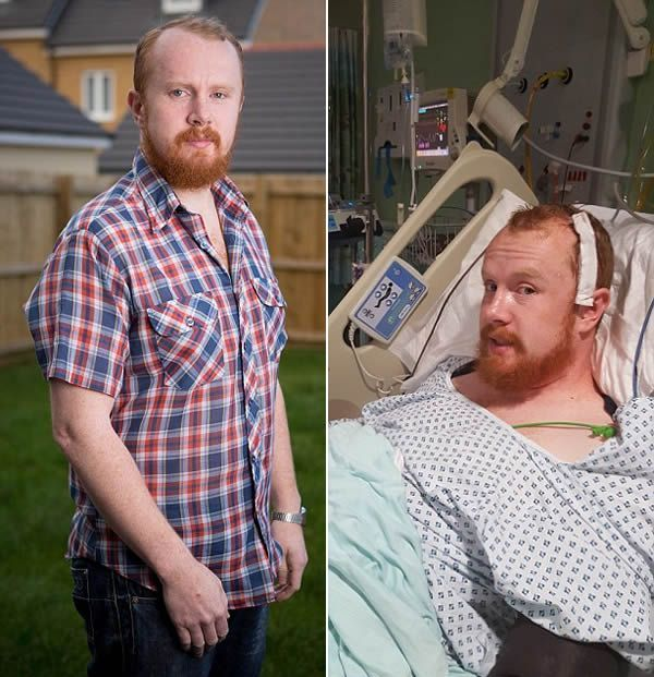 8 Bizarre Ways People Discovered They Had Cancer (8 pics)