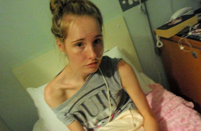 Girl Makes Amazing Recovery After Almost Losing Her Life To Anorexia (16 pics)