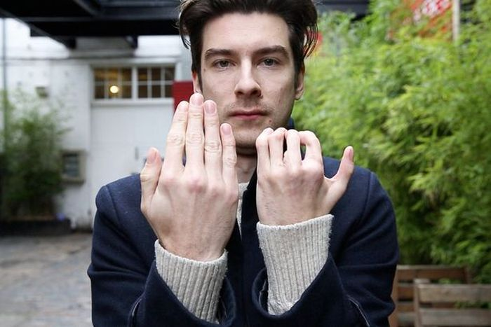 Actor Richard Stott Had His Fingers Replaced By Toes Due To A Birth Defect (5 pics)