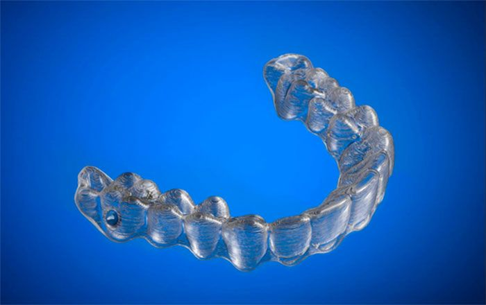 College Student Saves Thousands Of Dollars By 3D Printing His Own Braces (6 pics)