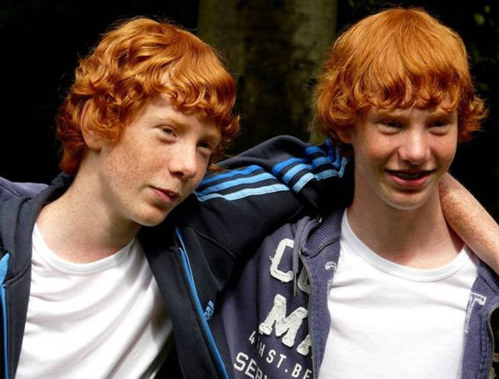 Fascinating Facts About Twins That Might Blow Your Mind (16 pics)