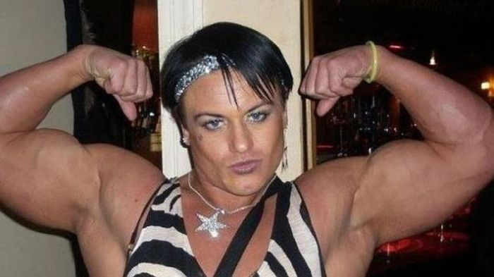 Steroid Abuse Had Some Negative Side Effects On This Woman (12 pics)
