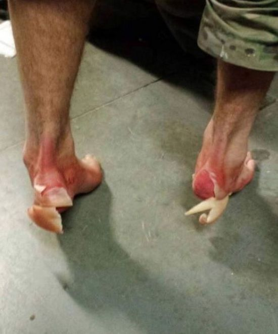 See What The Feet Of A US Marine Look Like After Walking The Manchu Mile (2 pics)