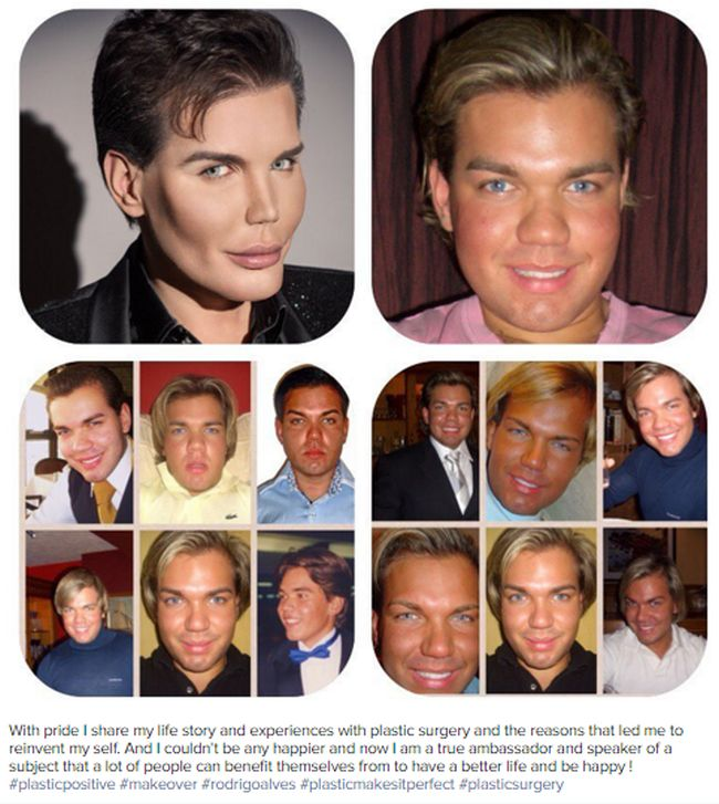 This Guy Really Messed Up His Face While Turning Himself Into A Human Ken Doll (5 pics)