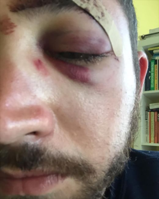 Shia LeBeouf Reaches Out To His Doppelganger Who Got Punched In The Face (4 pics)