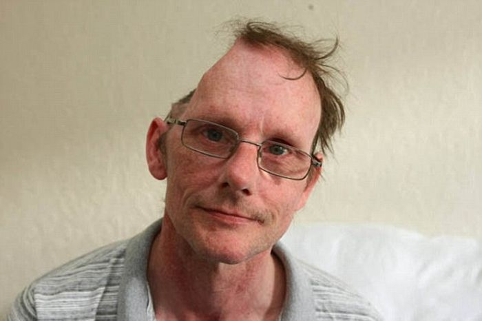 Man Ends Up With Half A Head After Suffering A Stroke (3 pics)