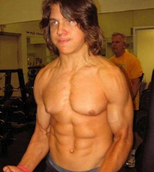 This Bodybuilder Was Once Called Little Hercules, See What He Looks Like Now (6 pics)