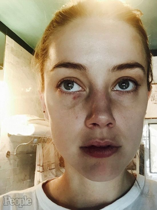 New Photos Surface From Johnny Depp's Alleged Attack On Amber Heard (4 pics)