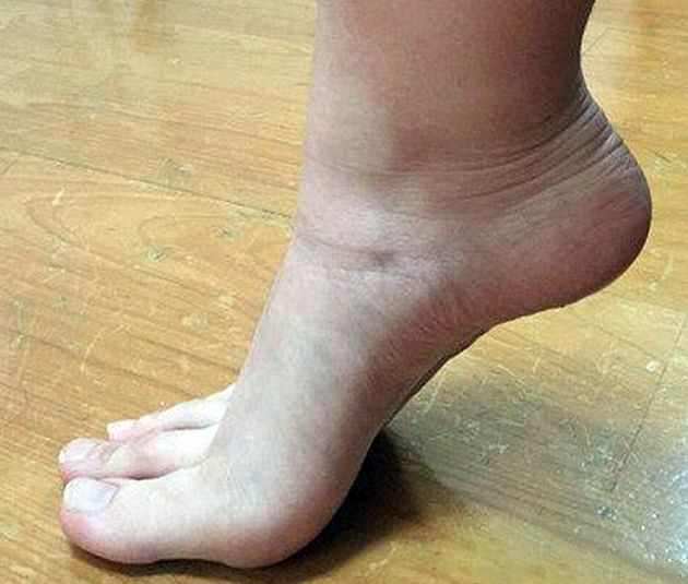 Can You Tell Which Ones Are Fingers And Which Ones Are Toes? (5 pics)