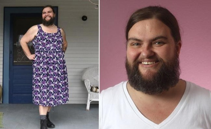 Meet The Woman With A Full Fledged Beard On Her Face (3 pics)
