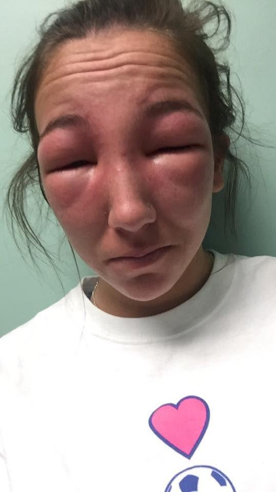 Girl Has Awful Allergic Reaction To Poison Ivy (2 pics)