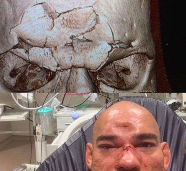Evangelista Santos Suffers Fractured Skull Taking A Knee To The Forehead (2 pics)