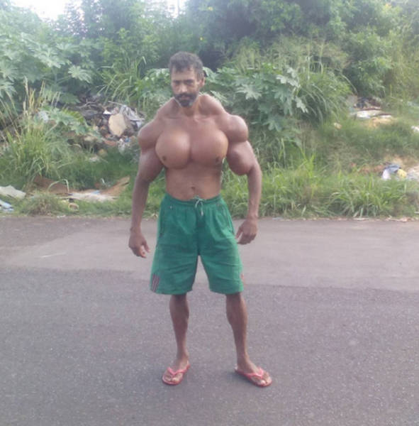 After Getting Made Fun Of For Being Thing This Man Bulked Up The Wrong Way (19 pics)