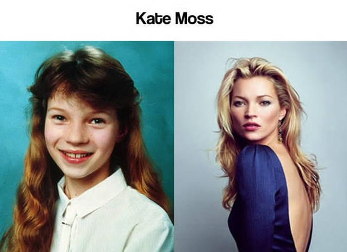 Awkward Photos Of Young Celebrities From When They Weren't That Attractive (28 pics)