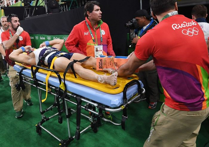 French Gymnast Breaks Leg During Vault Gone Wrong At The Olympics (7 pics)