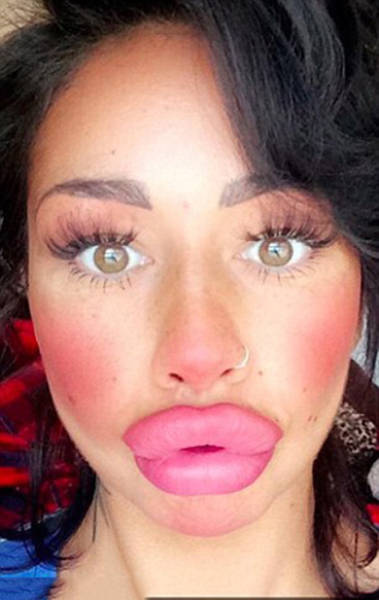 This Woman Wants To Take Her Huge Lips And Make Them Even Bigger (11 pics)