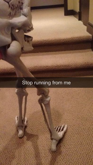 This Guy's Sad Story About His Skull Became A Snapchat Sensation (8 pics)
