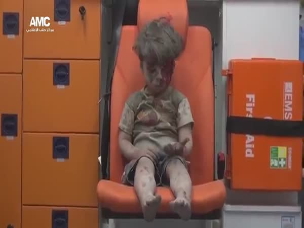 5-Year-Old Syrian Boy After An Air Raid In Aleppo
