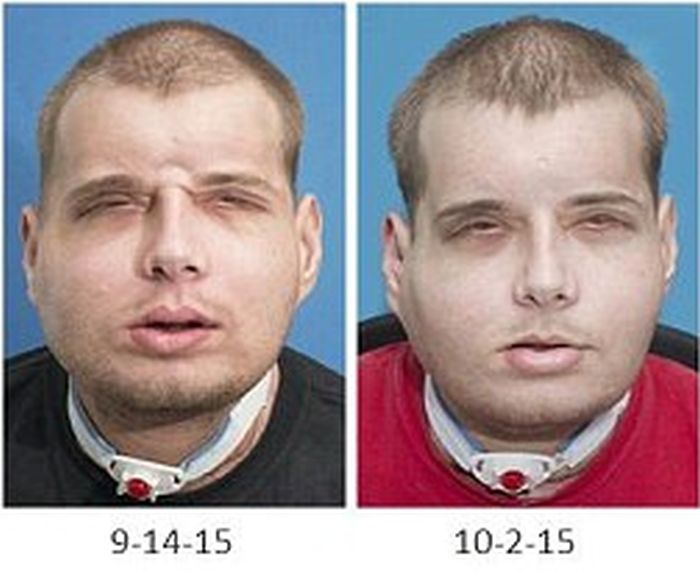 New York Firefighter Adjusts To His New Life After Receiving A Face Transplant (8 pics)