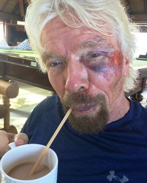 Richard Branson Receives Medical Attention After Brutal Bike Crash (7 pics)