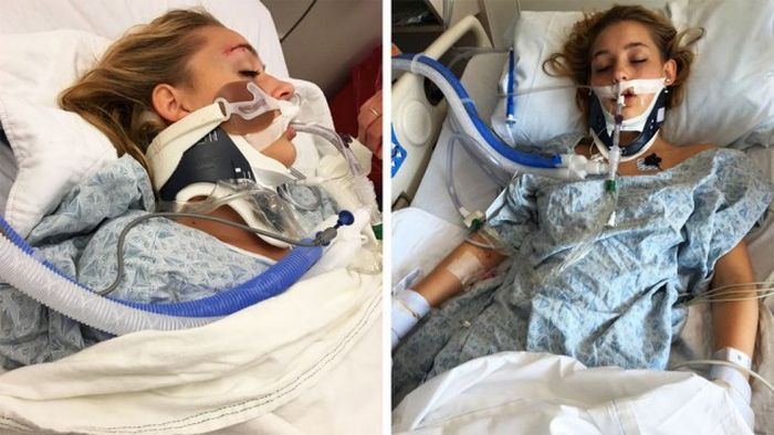 Teenage Girl Falls Into Alcoholic Coma After A Night Of Drinking (3 pics)