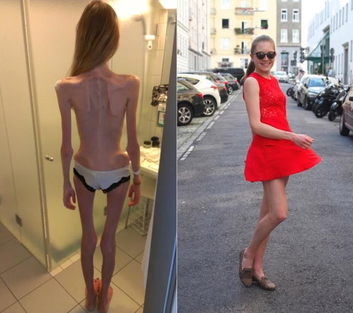 Anorexic Girl Inspires People To Get Healthy After Being Days Away From Death (5 pics)