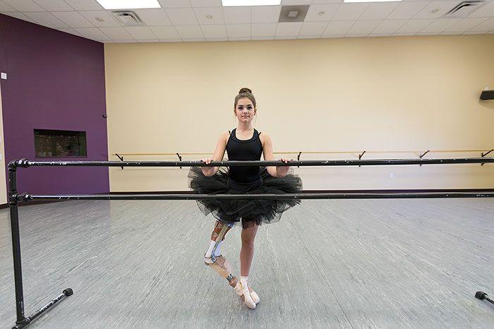 Teenage Amputee Ballerina Makes An Incredible Recovery (5 pics)