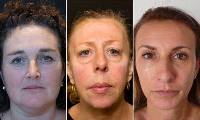 One Of These Women Has Had Filler For 10 Years (4 pics)