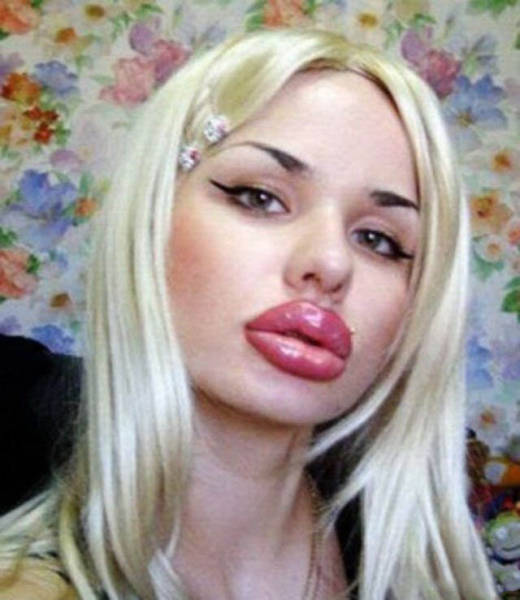 Plastic Girls That Turned Into A Total Freak Show (43 pics)