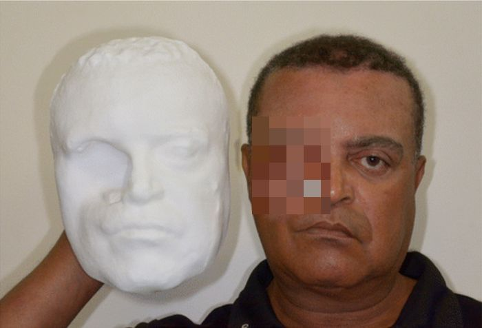Brazlians Create Incredible Facial Prosthesis Using A 3D Printer (3 pics)