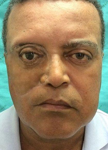 Brazlians Create Incredible Facial Prosthesis Using A 3D Printer (3 pics)