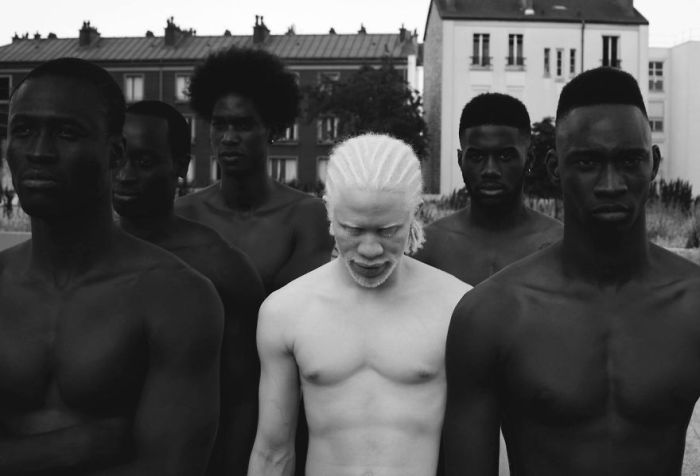 You'll Be Amazed By These Albino People And Their Unique Beauty (32 pics)