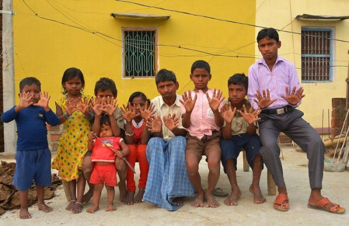 Everyone In This Indian Family Has 12 Fingers And 12 Toes (13 pics)