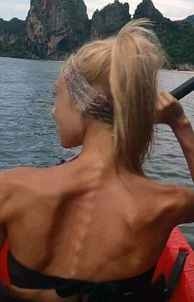 Woman With Eating Disorder Turns It Around To Become A Bodybuilder (11 pics)