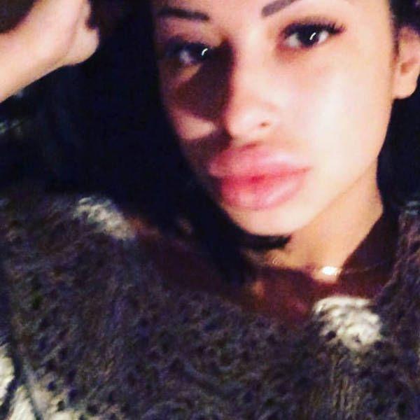 Anya Flaunts Her Massive Fake Lips (21 pics)