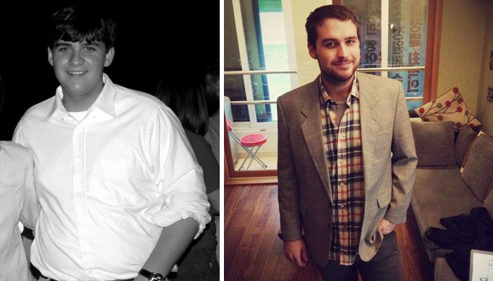 People Share Their Unbelievable Ugly Duckling Transformations (30 pics)