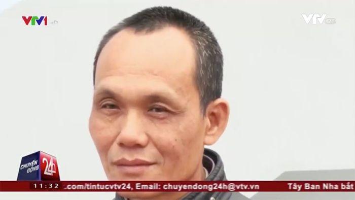 Vietnam Medics Remove Scissors From Man After 18 Years (3 pics)