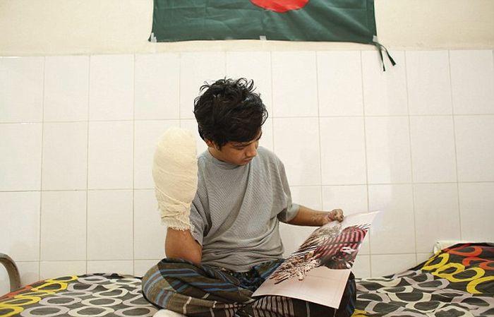 Bangladesh Man With Rare Disease Finally Cured (6 pics)