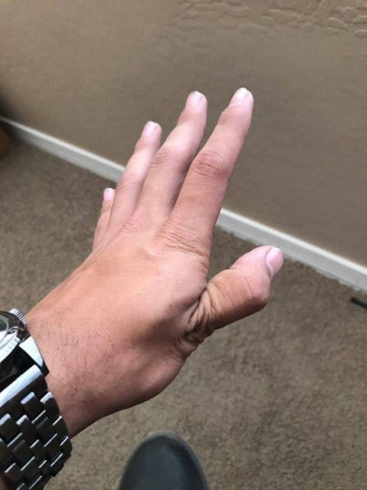 How To Dislocate Your Thumb (14 pics)