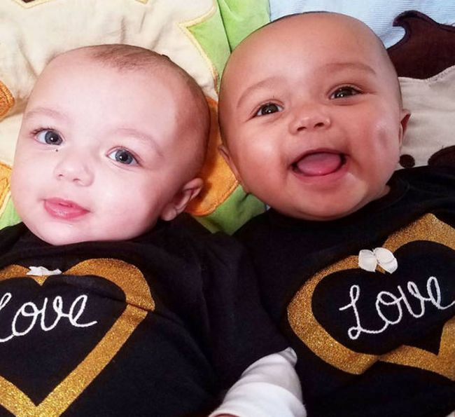 These Adorable Twin Sisters Have Defied The Laws Of Nature (5 pics)