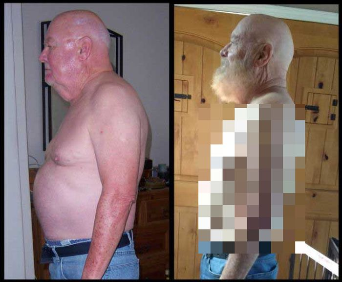 Elderly Man Shares Stunning Weight Loss Photos (2 pics)