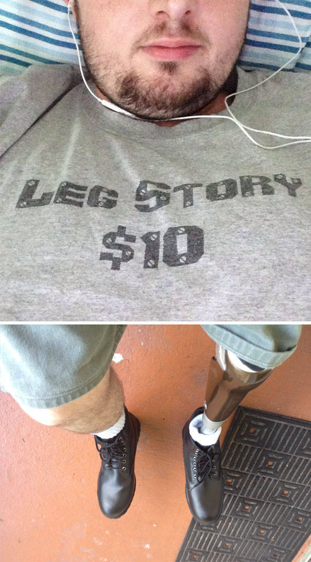 Losing Your Limbs Doesn't Mean You Lose Your Passion For Life (36 pics)