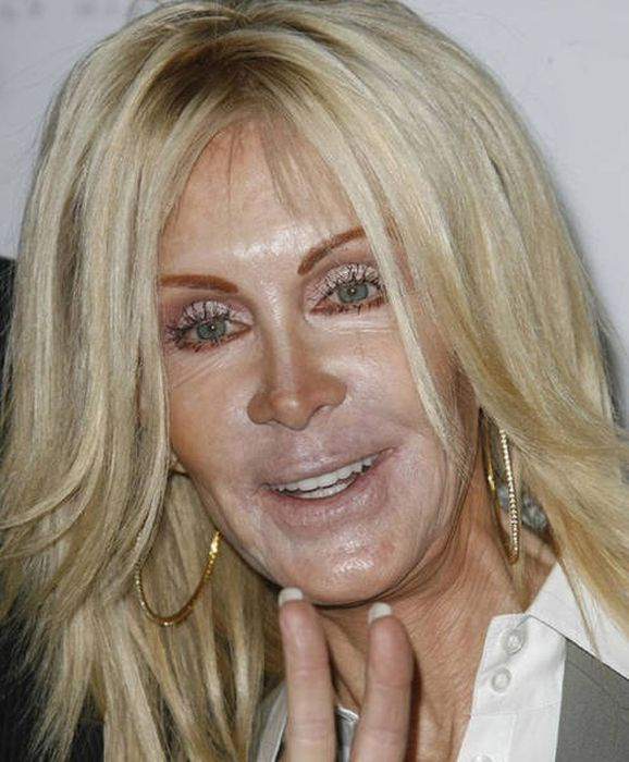 Irreversible Plastic Surgery Fails That Are Straight Up Scary (39 pics)