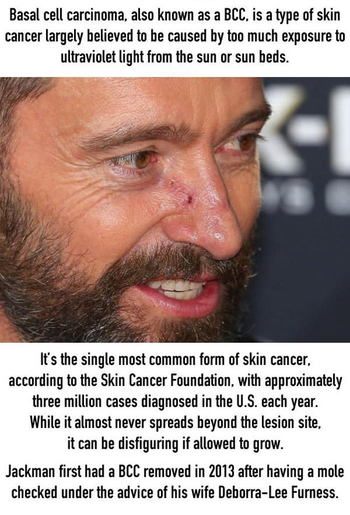 Hugh Jackman Warns Fans To Wear Sunscreen (7 pics)