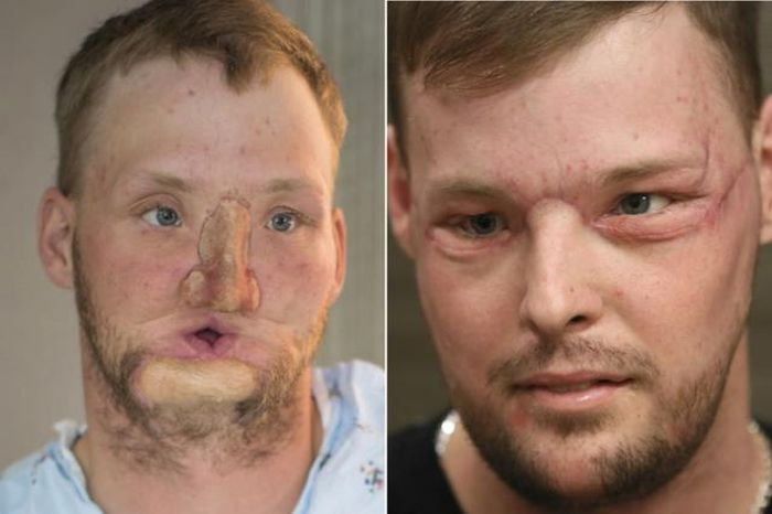 Maya Clinic Performs Its First Face Transplant (7 pics)