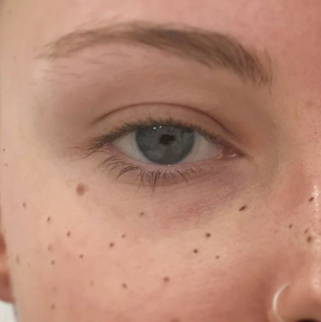 Tattooing Freckles On Your Face Is The Latest Beauty Craze (14 pics)