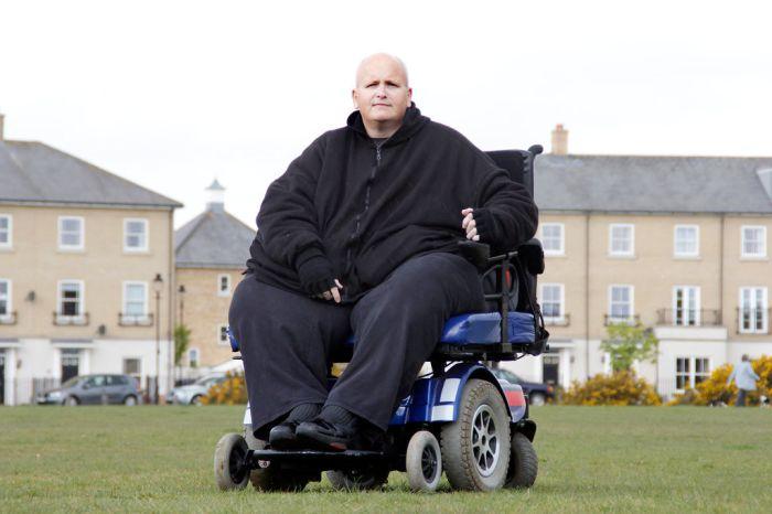 World's Fattest Man Drops 700 lbs (5 pics)